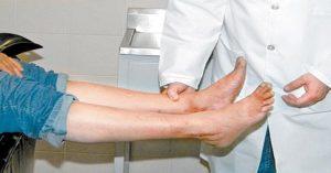 Usar hamamelis para la circulación de las piernas